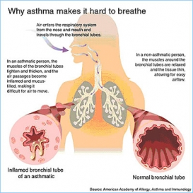 Asthma photo small