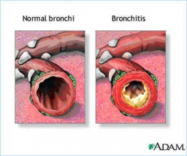 Bronchitis small photo