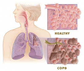 COPD small photo